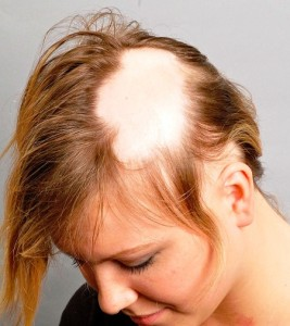 Народные средства для роста волос на лысине